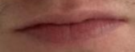 Thijs mouth